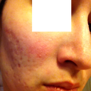 Day 13 Right - Right cheek has more acne scarring