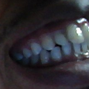teeth image 2