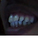 Teeth Image3