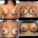 "Google searched size ""C"" breastfeeding implants. This is my desire!"