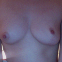 This is a picture I took that shows that my breasts are different shapes, as well as how uneven my nipples are. The right breast is the one that was reduced.