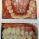 My teeth before treatment.
