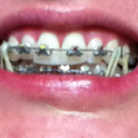 Fast Braces with Bands to help with bite