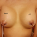 During the first week both breasts were even and before BA my breasts were pretty even too. But now its not. The right side is leaner and less puffy looking as well as about a cup size smaller.