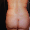 Back Side before surgery