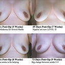 Weeks 5, 7, 8 & 9 (9 week pic is actually Day 63, sorry for the typo)