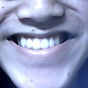 My unsymmetrical smile lines.
