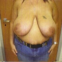 breast reduction pre-op