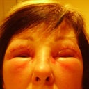 Day 3 Allergic reaction one eye closed