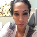 at drs office with lidocaine all over my face and some in my hair