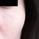 Large tube/lump underneath eye and on cheek from fat transfer, note some pigmentation and pores