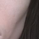 """Contour deformities"" from fat graft to cheek. Notice the big depression and how there is no separation with the fat from the upper to lower cheek. Also, notice increased pores and pigmentation on the fat grafted area"