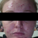 "My ""before"" shot. Most of the red lumps are cysts on my face, and you can't see a few that surround my eyes. It also doesn't do justice to how red my face actually is!"