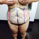 Marked up front b4 surgery. Vaser 4d abdominoplasty, Vaser 4d Lipo to tummy, arms and inner thighs