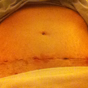 15 days post-op