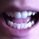Before, with my mouth open so you can see the bottom teeth.
