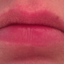 Lips before: morning of injection. Late 40s, used to have quite full lips which have lost volume over time.