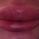 Lips after: ~ 7:30 a.m. morning after injection, swelling horrendous, even area of upper lip under nose hugely swollen, bruising SEEMS to have stabilized, upper lip swelled hugely after being iced with light compression per doctor's instructions. Washed off Arnica gel, stopped icing them, afraid to do anything else.