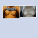 On the left is currently with 750 cc's and the right is before breast cancer