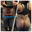 Hanging skin due to lipo/ uneven hips/ no roundness