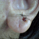 Left earlobe after surgery