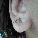 Right earlobe after surgery