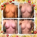 4, 5, 6 wk collage & nipple covers