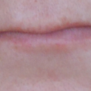You can see my lips are very thin and on the left side where the scar is the lip is crooked.