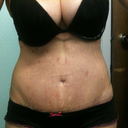 3weeks. I have the silicone strip on BB.Spots on tummy is where blisters were after TT.