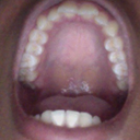 Upper teeth