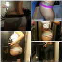 Colorful striped undies r the 2post op 1month photos all the rest r preop pics