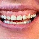 Teeth before crown lengthening/gum lift surgery and 6 upper veneers. Quite a difference.