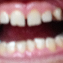 Dental Situation Photo