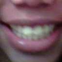 before - Yuck I picked my yellowest teeth pic!