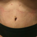 11 days post op.  New belly button.  Tummy is flat with very little visible stretch marks.