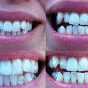 Pre-Invisalign vs Tray 7. (Top: Pre / Bottom: current)
