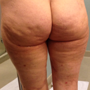 Day 13 - Back Side - as you can tell, it looks like the same cellulite that was originally there. I'm going to hold out until 6 or more weeks until I decide if it was worth it or not.  I'm being patient and expecting results for the $7k I paid.