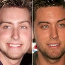 Lance Bass... celebrity, but his nose before and after appear l