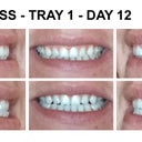 Tray 1 day 12 - feel larger gap on top left teeth.