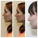 LEFT PROFILE: before (left), morphed image Dr. B created (middle), and 2.5 months post-op (right)