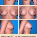 Is it just me or do these look just like my boobs?(but bigger) her after is about the same size implants I'm lookin@