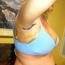 My underarm where I had lipo.