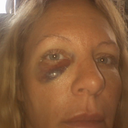 This was the black eye a day after the procedure. The bagginess came on a few days later.
