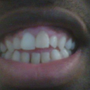 You will notice discoloration of the protruding left front tooth