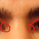 here's a pic of problems that are affecting the shape of my eyes (highlighted area's)