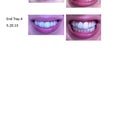 This is my invisalign progress sinces March 2013 (tray 1 to tray 5)
