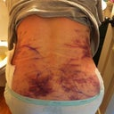 Day 2 PO. This is my lower back area - you can see all the bruising from the lipo on my lower back and on my flanks.