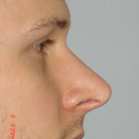 Right side view Original Rhinoplasty