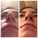 nostrils before and after