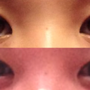 POST OP--6 WEEKS: non-smiling (top), smiling (bottom)